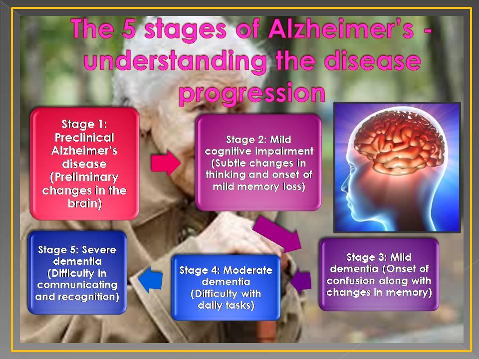 Inforgraph of Alzheimer's