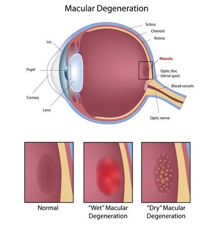 Wet/Dry Macular Degeneration