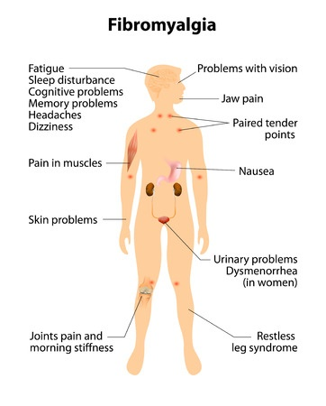 Diagram of Fibromyalgia|How To Care For Your Loved One With Fibromyalgia