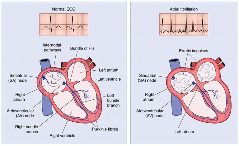 How To Care The Best With Atrial Fibrillation