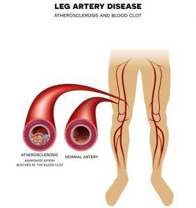 peripheral artery disease