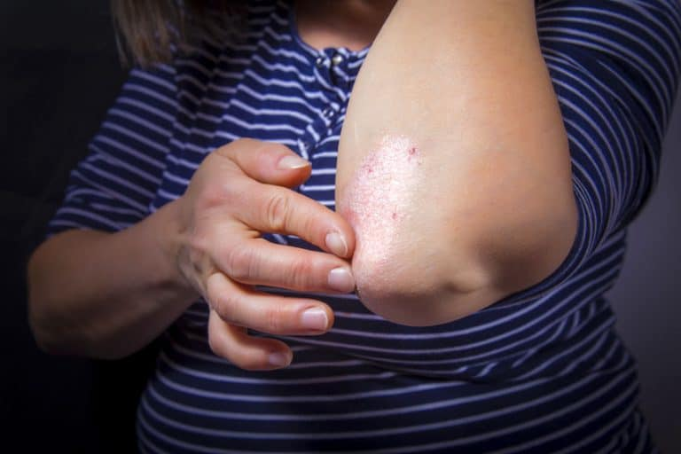 How To Better Deal With Psoriasis For Your Loved Ones Now